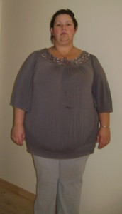 Jacqui at the start of her weightloss journey